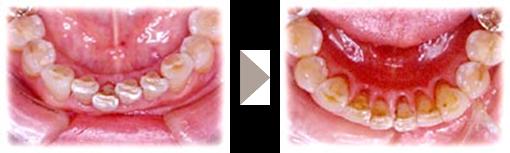 矯正歯科5