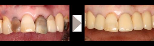 審美歯科1