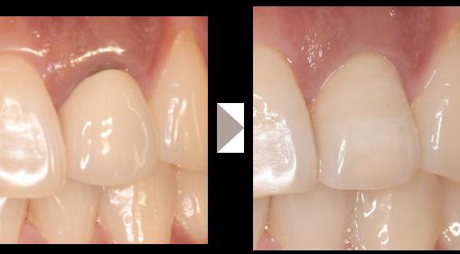 審美歯科2